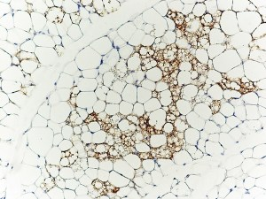 brown-adipocytes-in-white-adipose