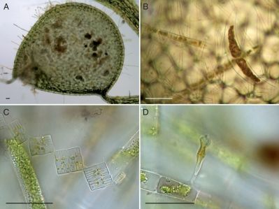 Algae trapped by Utricularia. (A) Trap of U. vulgaris from Seetaler See, containing algae and pollen grains. (B) Dead cells of Closterium sp. and Spirogyra sp. within a trap. (C) Dead Tabellaria flocculosa and an undetermined filamentous alga from a trap. (D) Dead Gomphonema constrictum growing on Spirogyra sp. from a trap. Bright field; scale bars???50?µm. Image Credit: Annals of Botany