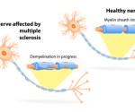 multiple-sclerosis