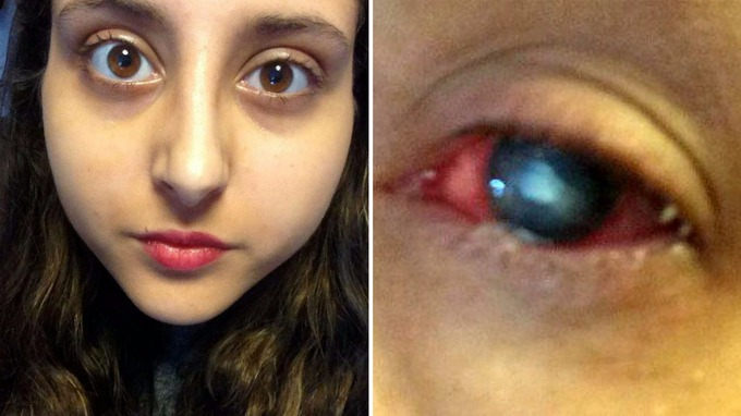 Student forced to stay awake for days on end to stop eye-eating