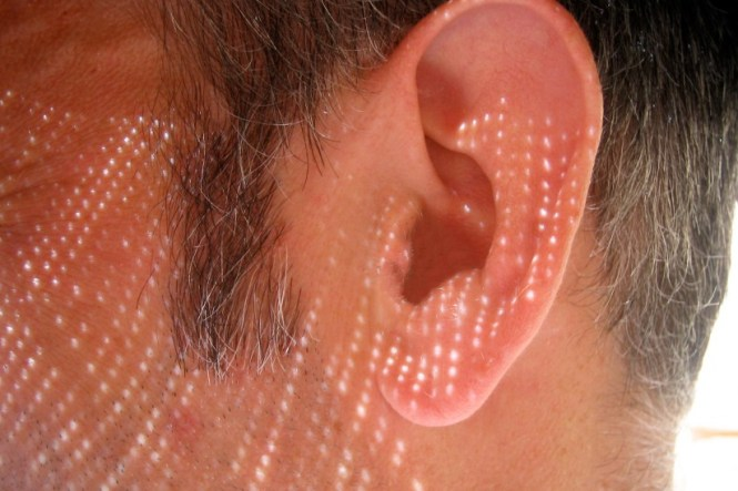 Noise induced hearing loss (NIHL) is one of the most common work-related injuries 2
