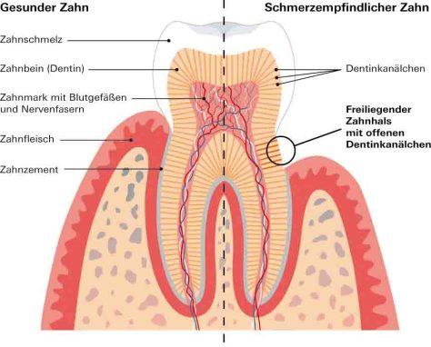 Freiliegende Zahnhälse sind die Hauptursache für schmerzempfindliche Zähne © Stiftung Warentest