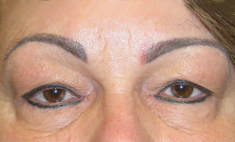 bilateral-upper-eyelid-blepharoplasty-correction-of-drooping-upper - ptosis surgery