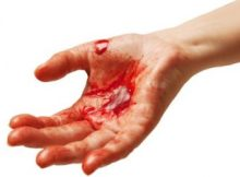 how-to-stop-bleeding-from-cuts-and-internal-bleeding-324x235