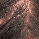 HOW TO GET RID OF DANDRUFF FAST AND NATURALLY – 7 TIPS TO TRY