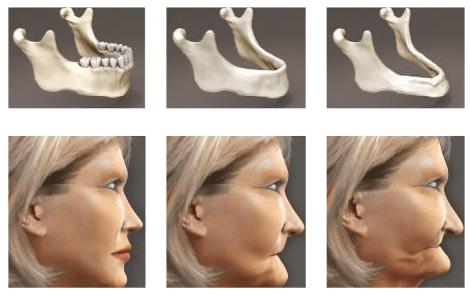 Атрофия костной ткани челюсти что делать