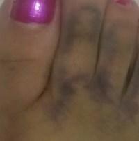 Mulher diz que imagem de Jesus apareceu em seu pé depois que ela caiu da escada