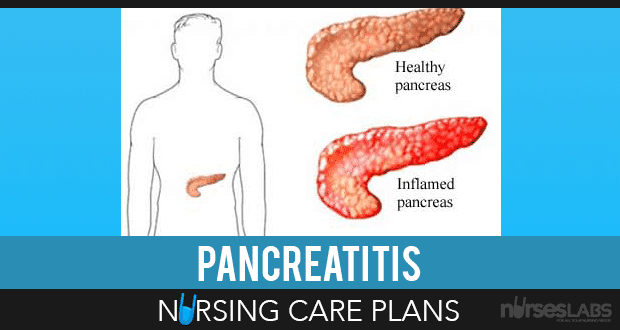 Pancreatitis-Nursing-Care-Plans