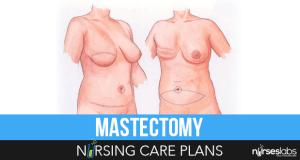 Mastectomy-Nursing-Care-Plans