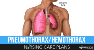 Pneumothorax-and-Hemothorax-Nursing-Care-Plans