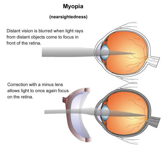 http://i0.wp.com/nursingcrib.com/wp-content/uploads/2012/01/myopia.jpg?w=604