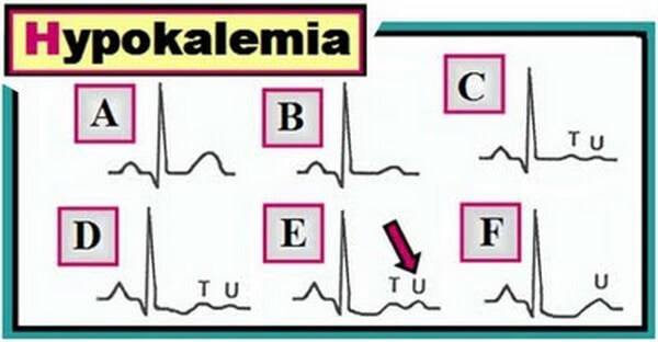 Hypokalemia Disease with Causes, Treatment and Nursing Intervention