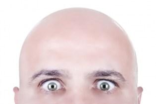O Dia dos Carecas é comemorado em 14 de março no Brasil. A data celebra aqueles que possuem calvície, uma forma gradual e progressiva onde as pessoas perdem os cabelos, e é mais comum nos homens.