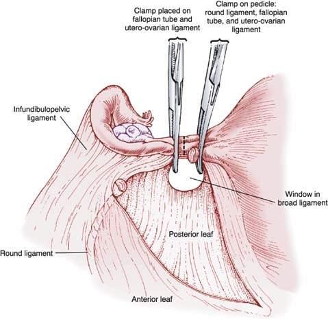 Abdominal hysterectomy anatomy 2187916 - togelmayainfo