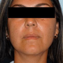 Bichectomia-antes
