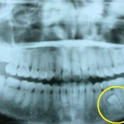 Supernumerario vista radiográfica