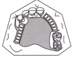 conector em placa