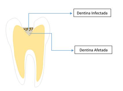 dentina cariada
