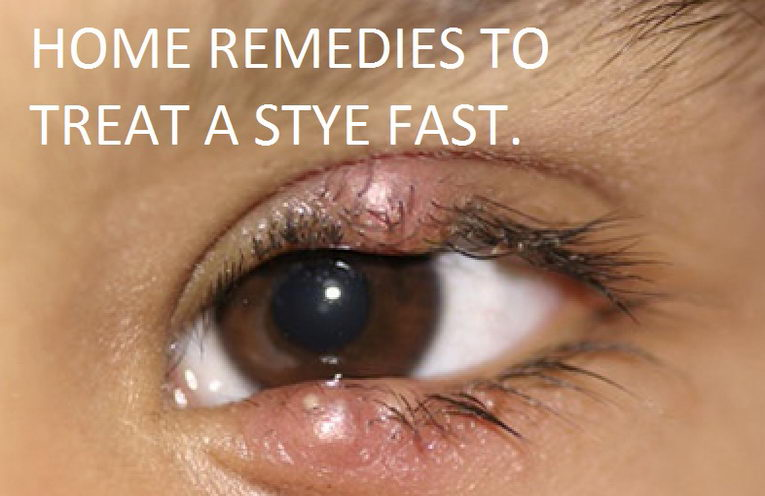 How To Get Rid Of A Stye Overnight 34 Home Remedies