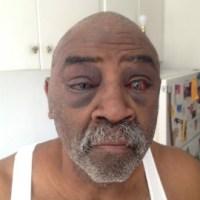 Oklahoma Police Beat Elderly, Deaf Man For 'Refusing Orders'