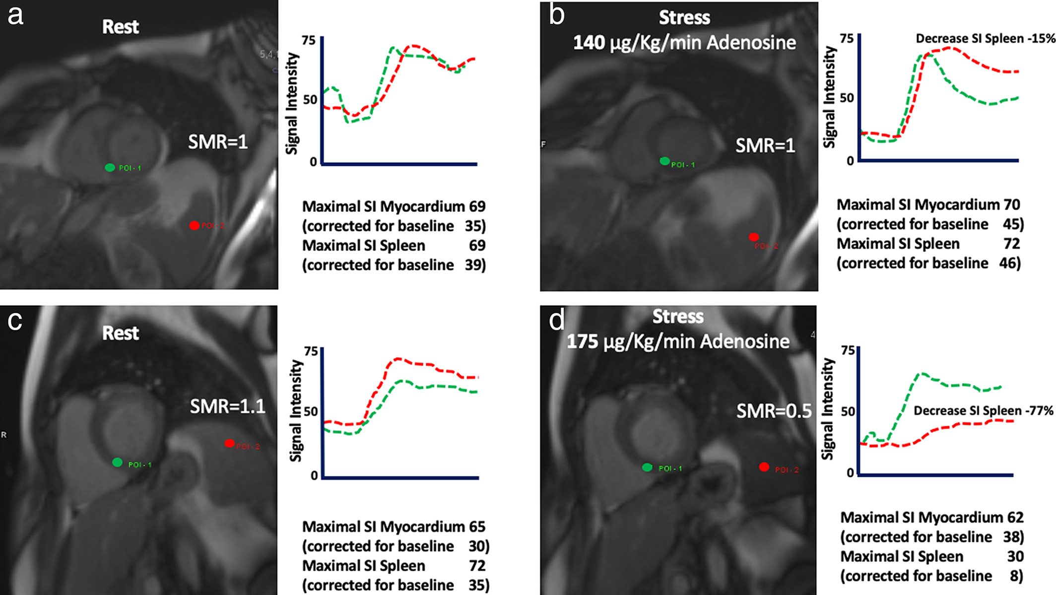 Splenic Switch Off For Determining The Optimal Dosage For Adenosine Stress Cardiac Mr In Terms Of Stress Effectiveness And Patient Safety Giusca 2020 Journal Of Magnetic Resonance Imaging Wiley Online Library