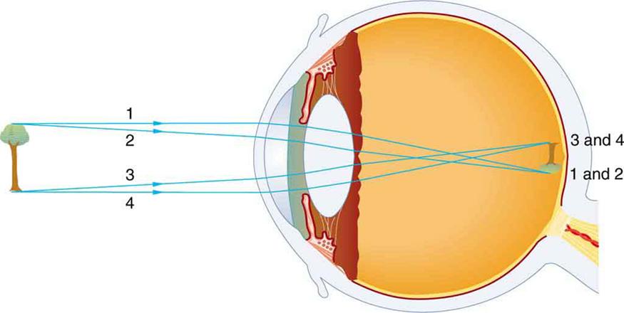 Physics of the Eye \u2013 College Physics