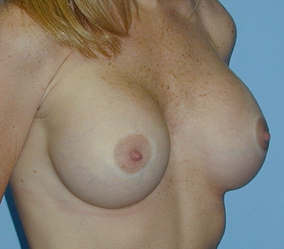 japan j cup breasts