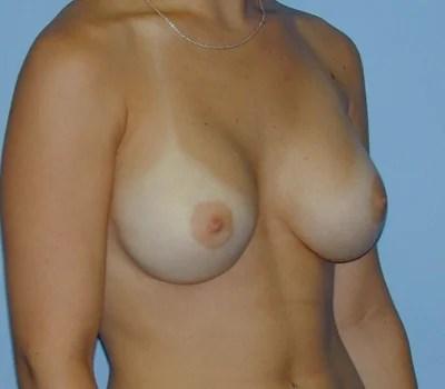 32d cup boobs