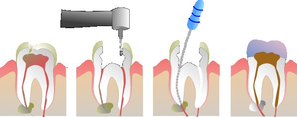I Have A Root Canal - What Are My Options? - OraWellness