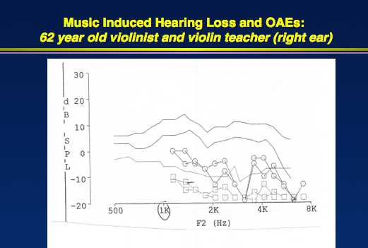 Patients on loop diuretics are more susceptible to noise-induced hearing loss than they would otherwise be 1