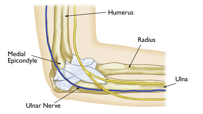 Ulnar Nerve Entrapment at the Elbow (Cubital Tunnel Syndrome