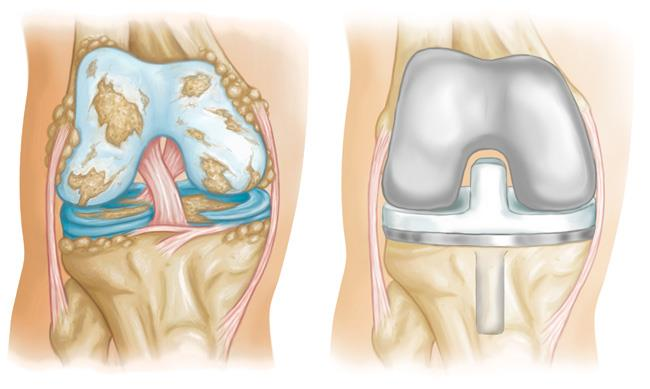 Knee Replacement Implants - OrthoInfo - AAOS
