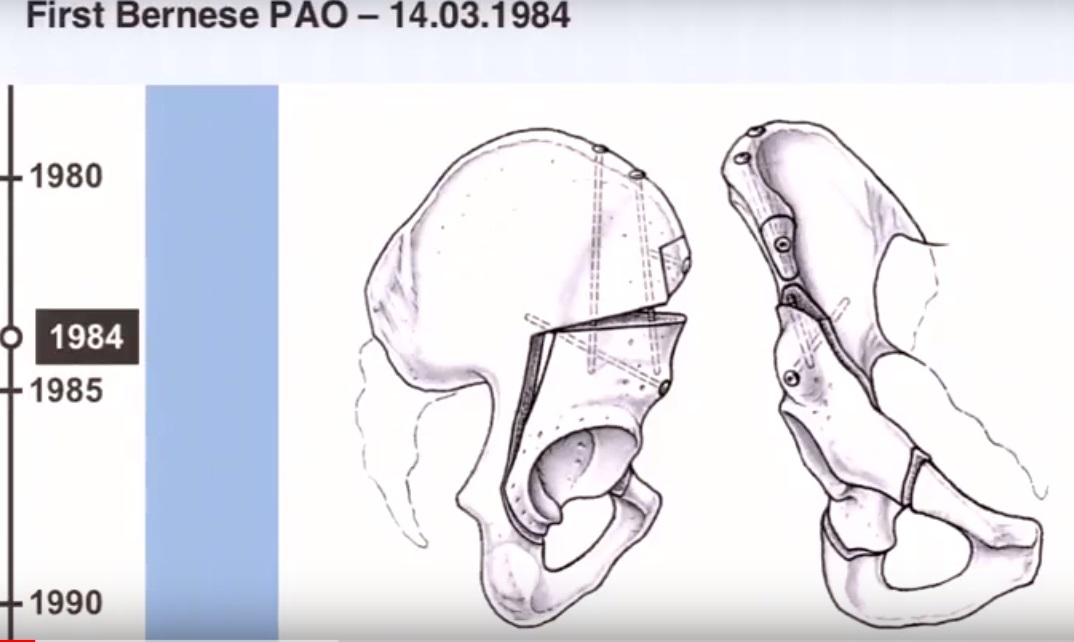 Long Term Results Of The Bernese Periacetabular Osteotomy