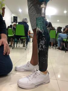 workshop sobre órteses e próteses 5
