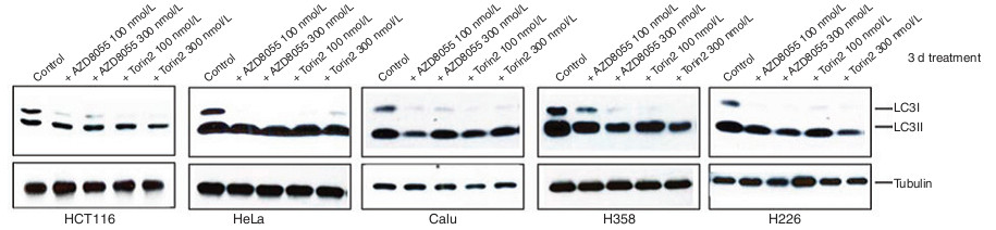 Autophagy Assays (LC3B immunofluorescence, LC3B western blot - western blot