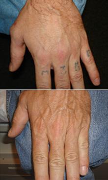 tattoo-vertical