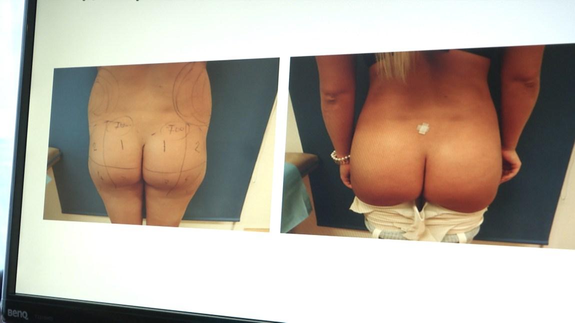 Rumpa til en ung kvinne før og etter fettransplantasjon.