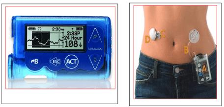 insulin diabetes padham