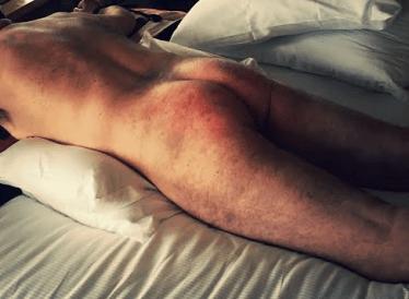 lying on bed megaro oct 2