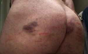bluedoor bruises