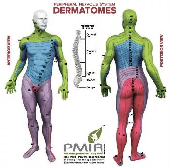 Dermatomes A diagnostic tool - Pain Injury Relief -
