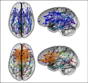 050115_brain-scans-1