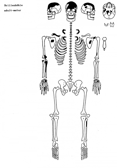 early labor diagram