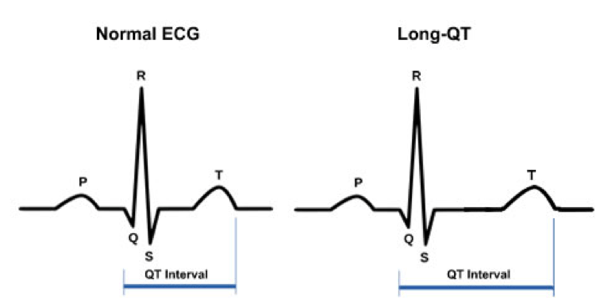 diagram of ecg