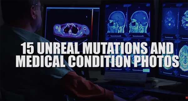 Vidéo: 15 Mutations et Conditions Médicales Surnaturelles