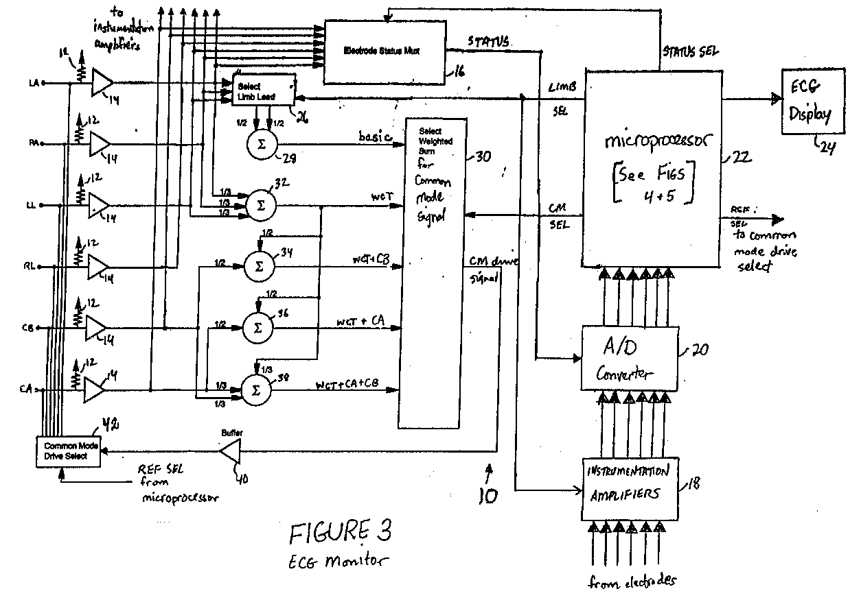ecg guide diagram