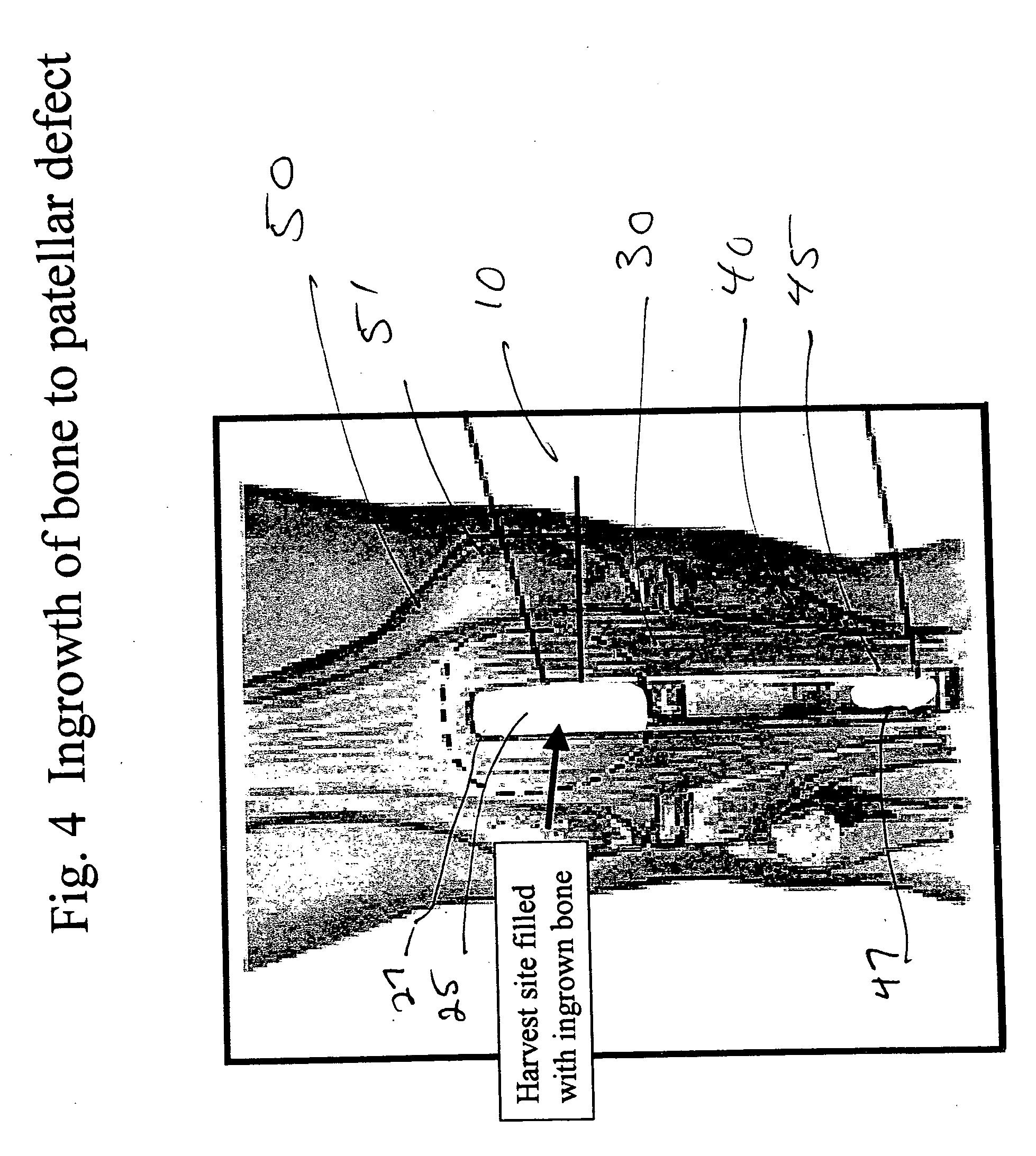 microfuse bone void filler