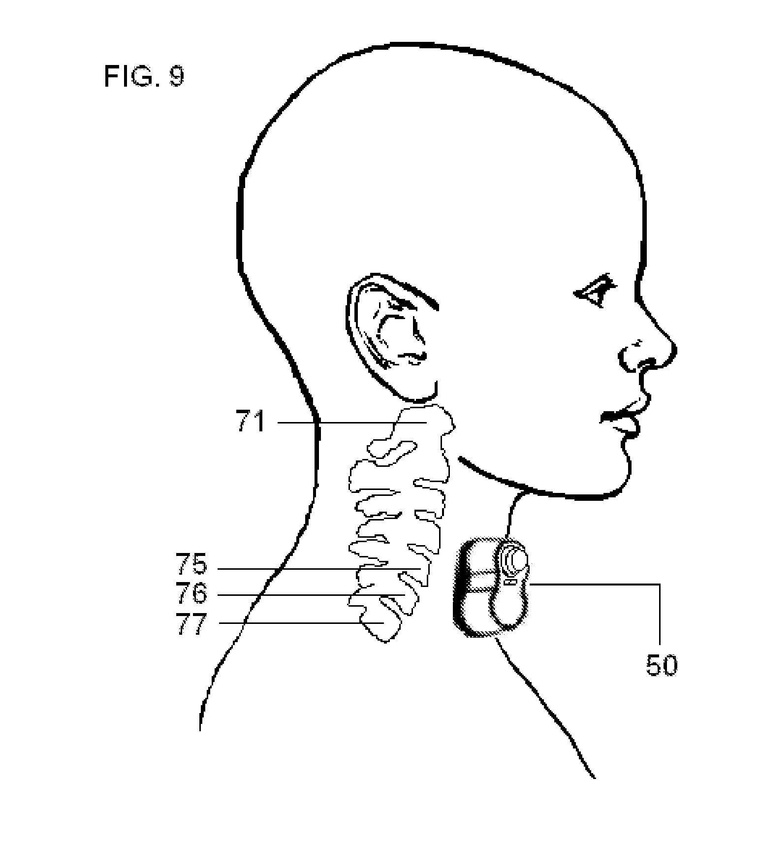 zimmatic wiring diagram