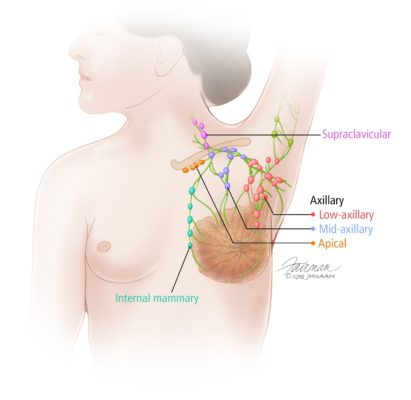 Overview of the Breast - Breast Cancer Johns Hopkins Pathology
