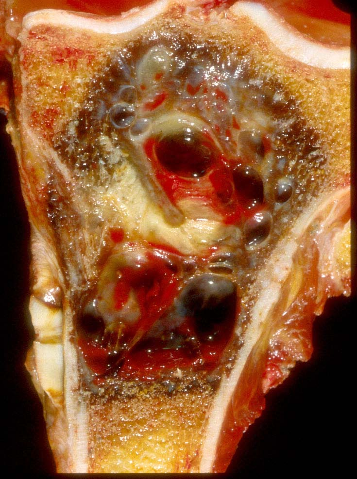 osteosarcoma in dogs